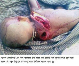 Supporters of Sayeede, Jammati Islamic beasts chopped to kill this innocent Hindu Child in Noakhali (Bangladesh) yesterday. What was the sin of this innocent Hindu Child? O Islamic Rioters, Please give me the answer?