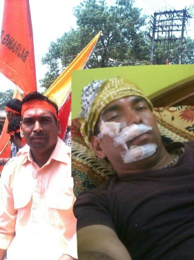 Bajrangdal Activist Severely beaten by Police