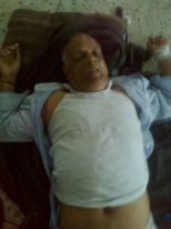 Air Poisoned Sri Ghosh is being found senseless and treated in a Natore Hospital.