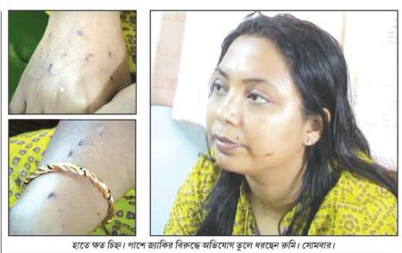 The Sign of Torture on Rumi Nath by her Muslim Husband Jacky Zakir. Pic. Source: Samayik Prasanga.