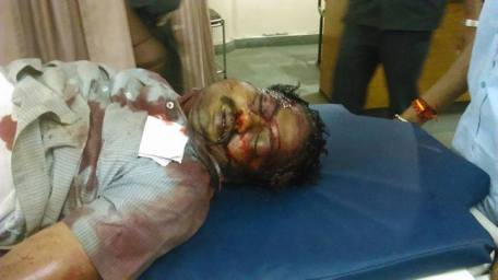 Vishwanath - the Hindu man hacked to death brutally by Islamic cadres of PFI in Shimoga.