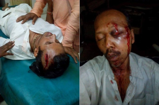 ISKCON DEVOTEES MERCILESSLY CHOPPED BY THE ISLAMISTS IN BANGLADESH.